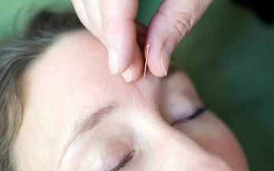 Akupunktur og zoneterapi ved barnløshed