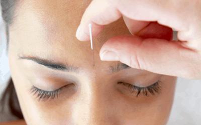 Har du overvejet at bruge akupunktur til at øge din fertilitet?